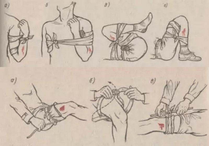 каким образом оказать первую посильную помощь при ранении полученном в результате дтп